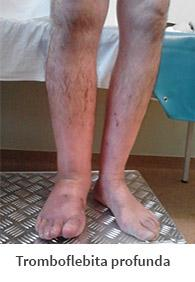 tromboflebita ulceroasa medicament pentru durerea venelor